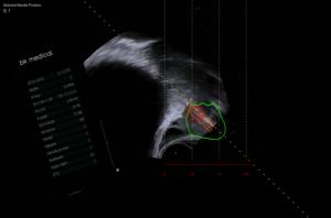 biopsia de próstata con técnica de fusión 360