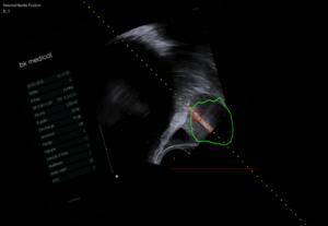 dove effettuare biopsia fusion prostata lazio 2017